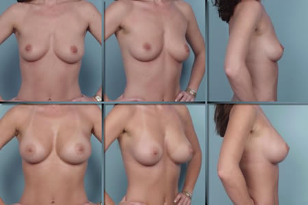 breast augmentation images