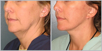 Facelift Surgery Information