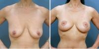 breastlift-4