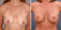 breastlift-1