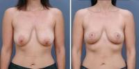 breastlift-2
