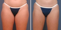 liposuction-1