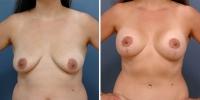 breastliftaug-2