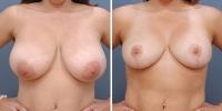 breastreduction-1