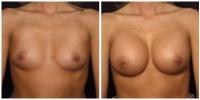 Breast Augmentation 4