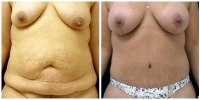 Tummy Tuck 4