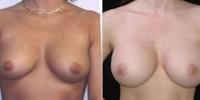 breastaug-5