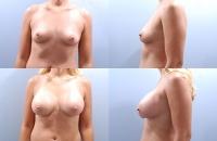 breastaug-1