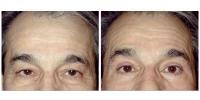 eyelids1