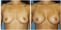 breastaug-3
