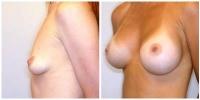 breastaug2