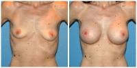 breastaug1
