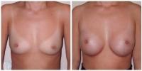 breastaug3
