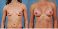 breastaug4
