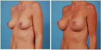 breastaug7