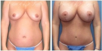 abdominoplasty-2