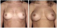 breast_aug1