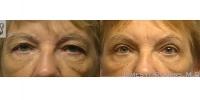 Eyelid-53613