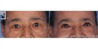 eyelid-12778