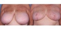 BreastReduction-56225