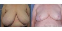 breastreduction-54633