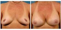 Breast Augmentation 7