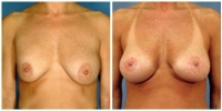Breast Lift w/Augmentation 1