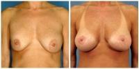 Breast Lift w/Augmentation 1
