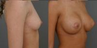 breastaug1.jpg