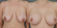 breastaug3.jpg