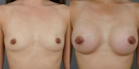 breastaug2.jpg
