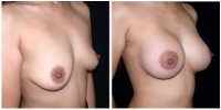 breast_aug3
