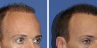 hair-restoration-1
