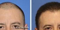 hair-restoration-2