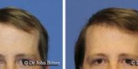 hair-restoration-3