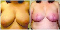 breast_redct1