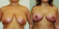 breastlift8