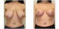 breast_lift1