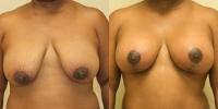 breastlift5