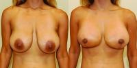 breastlift7