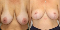 breastred3