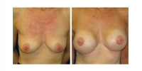 Breast Reconstruction 1