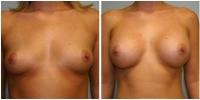 breast_aug1