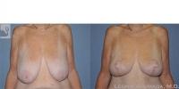breastreduction-49642