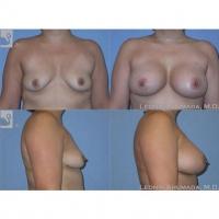 BreastAug-37241