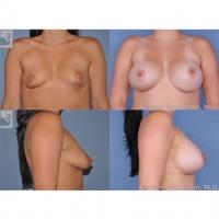 breastaug-24770