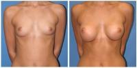 breastaug5