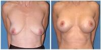 breastlift3