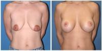 breastlift4
