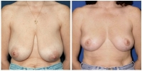 breastredct1